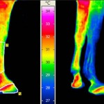 Drafts affect infrared thermography results